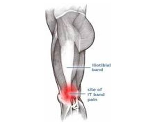What Is Iliotibial Band Syndrome & Why Do Cyclists Experience It?