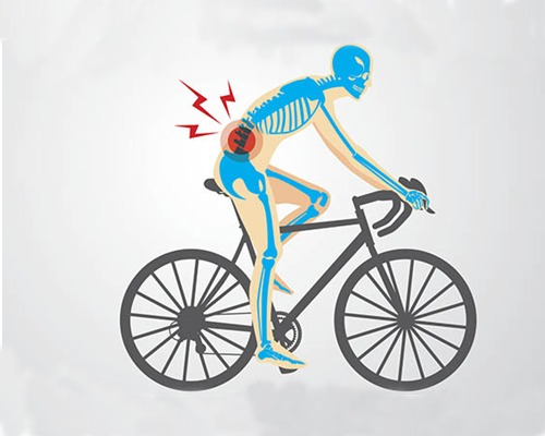 Why Do Cyclists Experience Back Pain When Cycling?