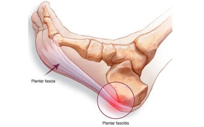 So What Is Plantar Fasciitis?