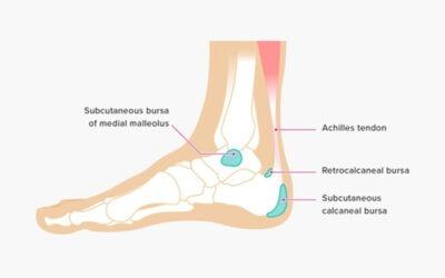 So What Is Calcaneal Bursitis?