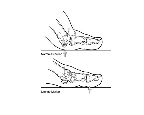 So What Is Hallux Rigidus?