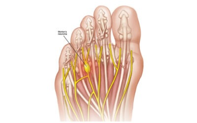 So What Is Morton's Neuroma?