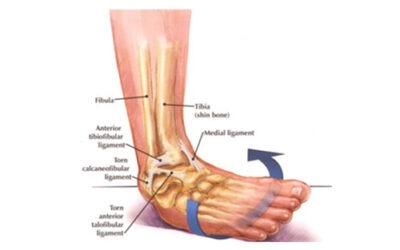 So What Is An Ankle Sprain?