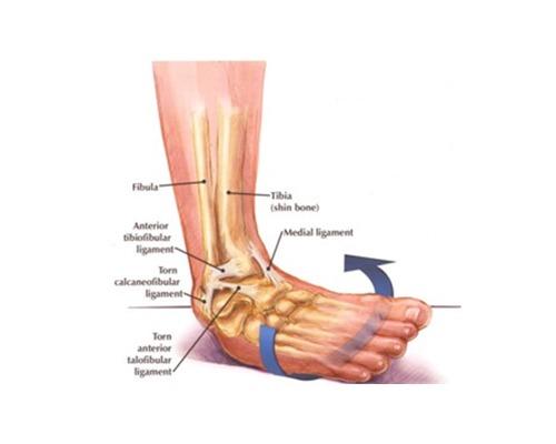 So What Is An Ankle Sprain?