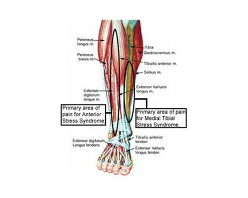 So what do we really mean when we say shin splints?