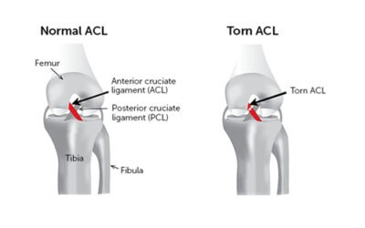 So What Is The ACL?
