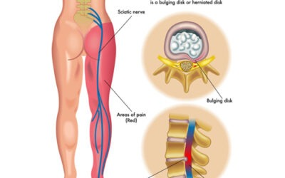 What Is Sciatica?