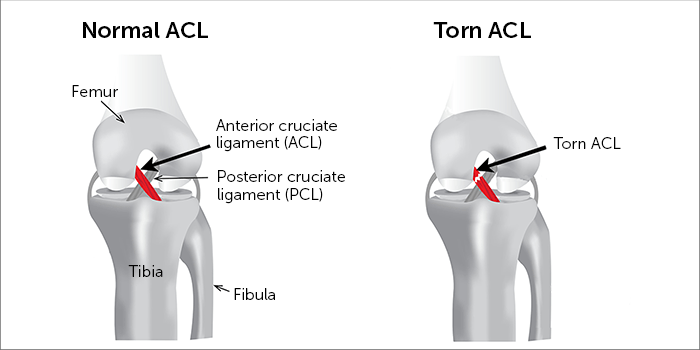 Image result for acl