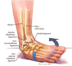 Image result for atfl sprain