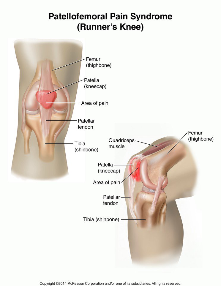 Image result for patellofemoral pain syndrome