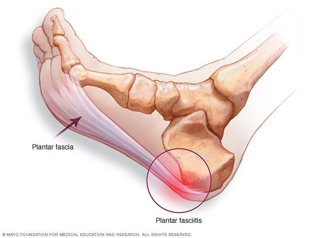 Image result for plantar fasciitis