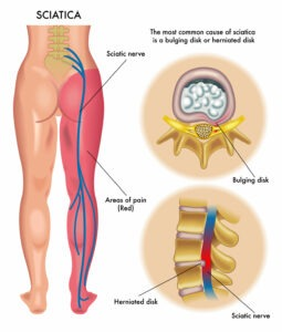 Image result for sciatica