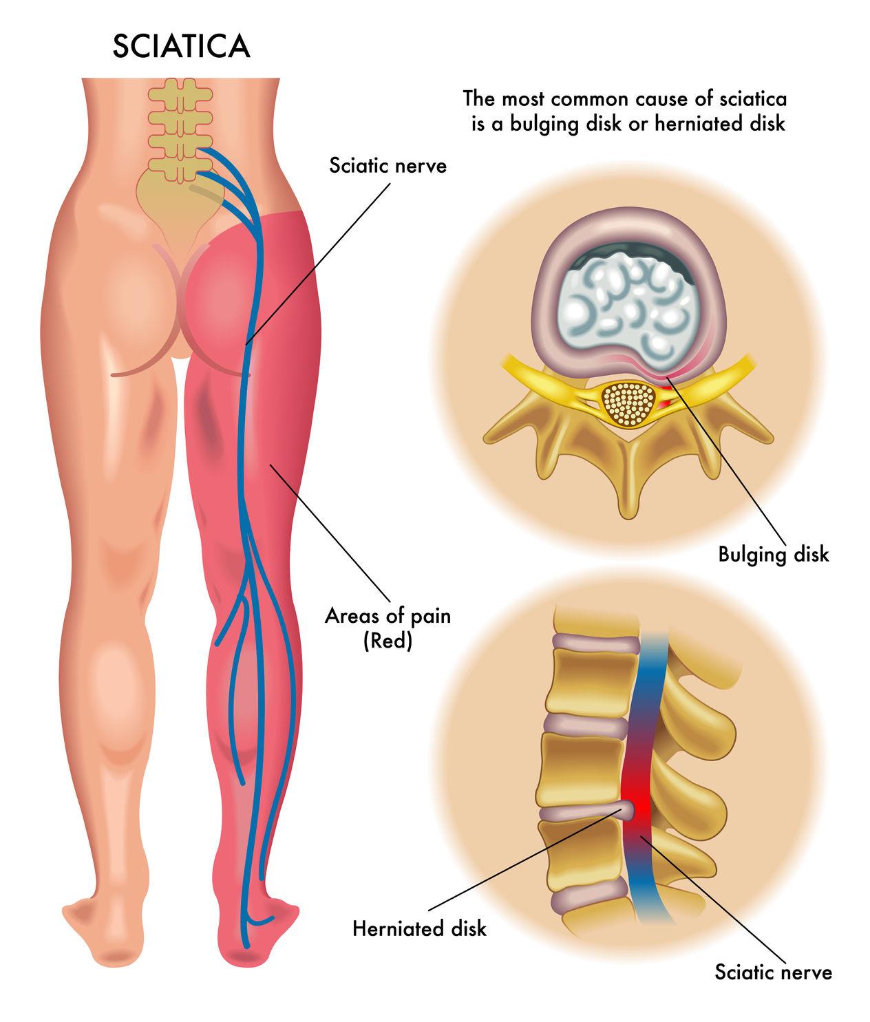 Image result for sciatica