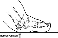 Normal function of the joint at the base of the big toe