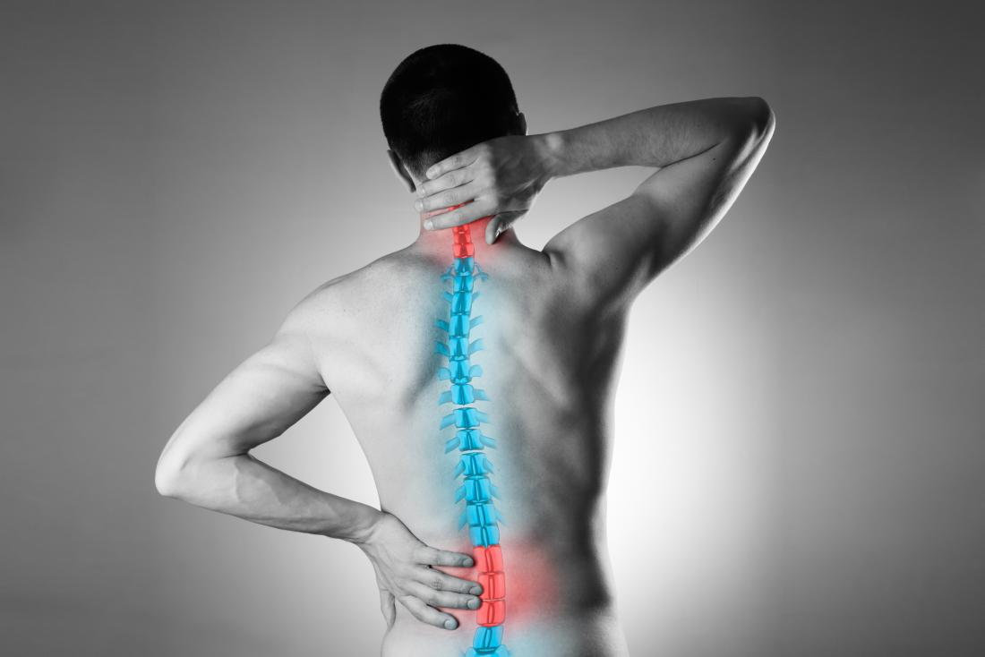 illustration of spine on man with back pain