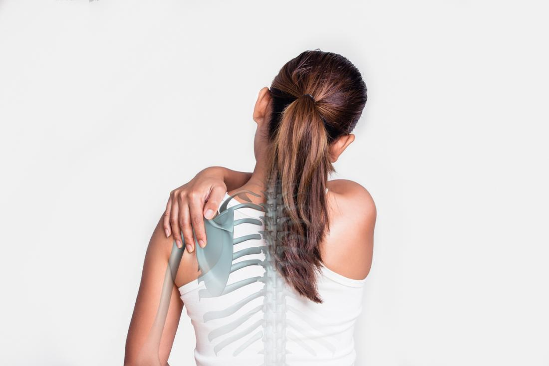 woman with shoulder pain skeleton showing